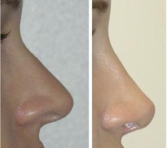 rinoplastiki xwris nysteri